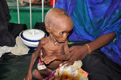 Graphic: charities use images of malnourished children