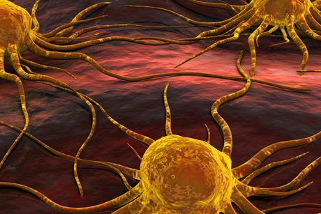 Technology: The tumour profiling targets metastatic cancers
