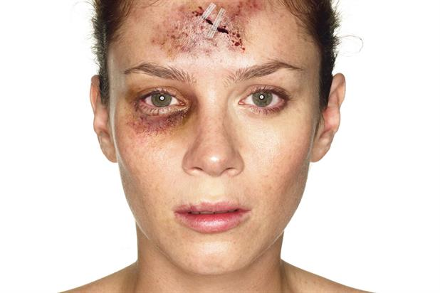 'Act': called for action by showing the physical effects of violence