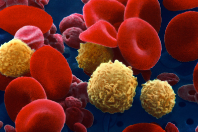 Xagrid is indicated for the reduction of elevated platelet counts in patients with essential thrombocythaemia.