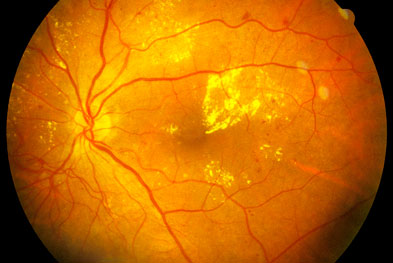 Ranibizumab is also recommended by NICE for the treatment of wet age-related macular degeneration | SCIENCE PHOTO LIBRARY