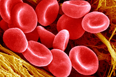 Thalassaemia is caused by mutations in haemoglobin genes.   SCIENCE PHOTO LIBRARY