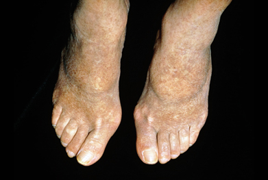Intermittent claudication can significantly impair mobility in people with PAD. | SCIENCE PHOTO LIBRARY