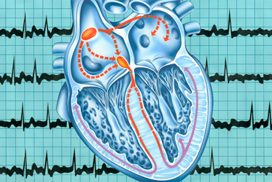 In addition to its use in atrial fibrillation (pictured), Eliquis is also licensed for the prevention of venous thromboembolism following elective hip or knee replacement | SCIENCE PHOTO LIBRARY