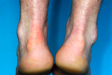 Adverse events associated with levofloxacin include tendinitis | SCIENCE PHOTO LIBRARY
