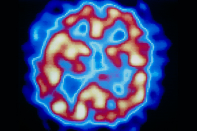 Manic episodes in bipolar disorder vary in intensity from mild mania to full-blown psychotic features including hallucinations (visible here as yellow areas of high brain activity on a PET scan of the temporal lobe).