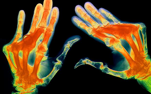 This new guidance brings the drug in line with other anti-TNF drugs licensed for the treatment of rheumatoid arthritis (pictured) that have been approved by NICE for NHS use | SCIENCE PHOTO LIBRARY