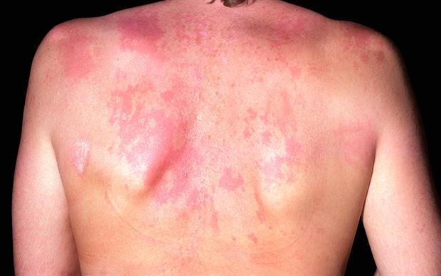 Belimumab targets BLyS, which is found at elevated levels in patients with systemic lupus erythematosus. | SCIENCE PHOTO LIBRARY