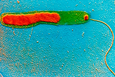 Travellers should practise strict food and water hygiene to minimise the risk of cholera. | SCIENCE PHOTO LIBRARY