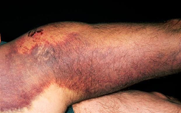 Individuals with Factor X deficiency experience excessive bleeding or bruising from relatively minor trauma. | SCIENCE PHOTO LIBRARY