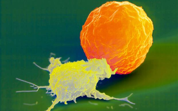 Elotuzumab directly activates natural killer cells. | SCIENCE PHOTO LIBRARY