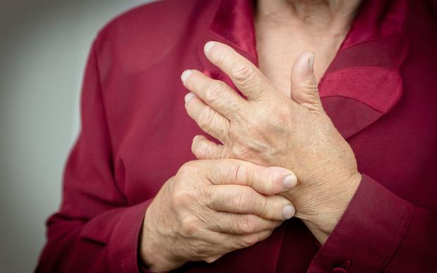 Etanercept has been shown to slow the progression of joint damage and improve physical function in patients with rheumatoid arthritis. | iStock