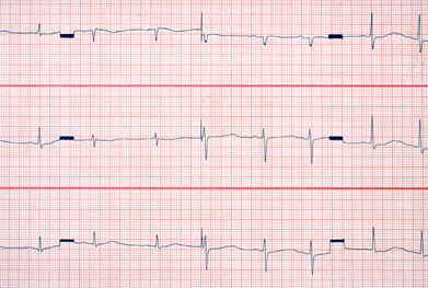 Citalopram is associated with dose-dependent QT interval prolongation | SCIENCE PHOTO LIBRARY