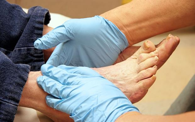 Healthcare professionals should follow diabetes treatment guidelines for routine preventive foot care in patients receiving canagliflozin. | iStock