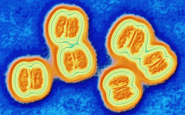Meningococcal serogroup B is the most common cause of meningitis in the UK, followed closely by group C.   SCIENCE PHOTO LIBRARY
