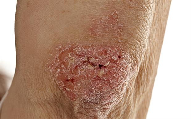 Ixekizumab is recommended as an option for treating severe plaque psoriasis that has responded inadequately to standard systemic therapies. | iStock
