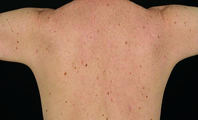 Atypical mole syndrome increases the risk of melanoma (Photograph: Professor Rino Cerio/Royal London Hospital)