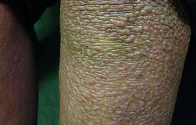 Atopic eczema and lichenoid papules (Photograph: Dr Ekaterina Burova)