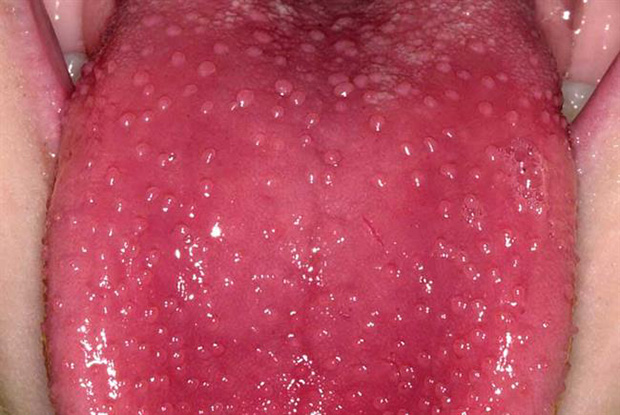 Strawberry tongue is often seen in patients with scarlet fever (Picture: Dr Nigel Stollery)
