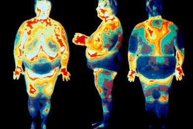 Obesity is a condition in which excess fat accumulates in the body, mostly in the subcutaneous tissues caused by indulgence in food (SPL)