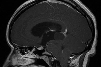 CNS tumours are a major cause of obstructive hydrocephalus