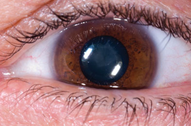 Cataracts typically start with the blurring of night-time vision and progresses into daytime
