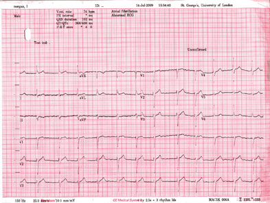 When confronted with an ECG it is best to start off with the basics: rate, rhythm and axis