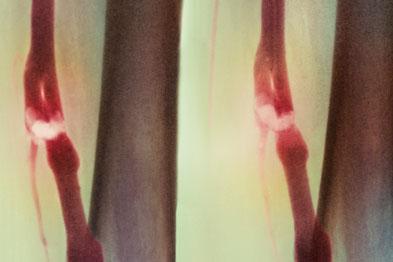 Coloured angiogram: DVT causing blood to pool beneath it (Photograph: SPL)