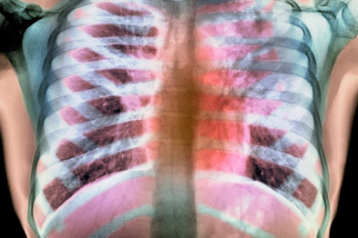 TB: still a serious public health issue (Photograph: Du Cane Medical Imaging Ltd/SPL)