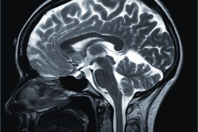 Scans taken during research found imaging exposed clinically-relevant observations outside the aims of the study