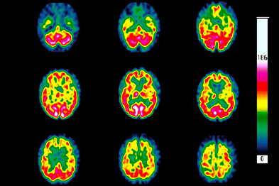Scans of Huntington's disease showing neuronal loss (green areas) (Photograph: SPL)
