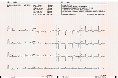 An ECG can aid diagnosis in patients with chest pains (Photograph: SPL)