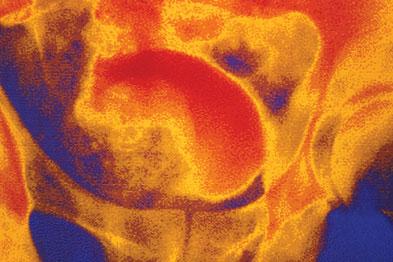 False colour IV urogram of enlarged prostate (gold shadow) (Photograph: SPL)