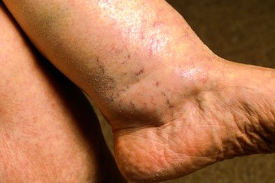 Ankle swelling oedema may be present with hyponatraemia