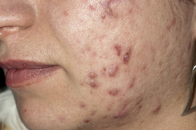 Acne vulgaris may lead to scarring once the inflammation subsides