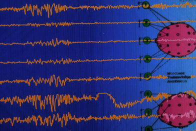 Patients diagnosed with epilepsy could in fact suffer from syncope