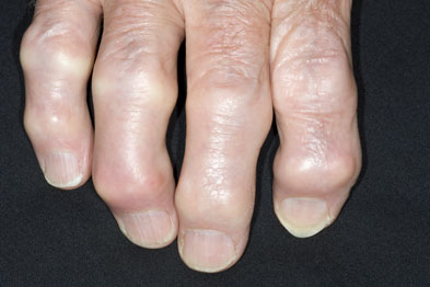 Hand OA has a good diagnosis, although swelling might be permanent