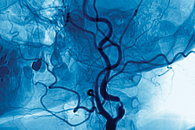 TIAs are caused when a blood vessel becomes blocked (Photograph: Zephyr/SPL)