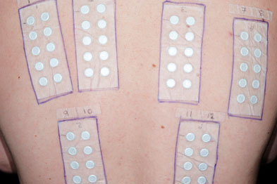 Six allergy test strips to test for allergic reactions (Photograph: SPL)