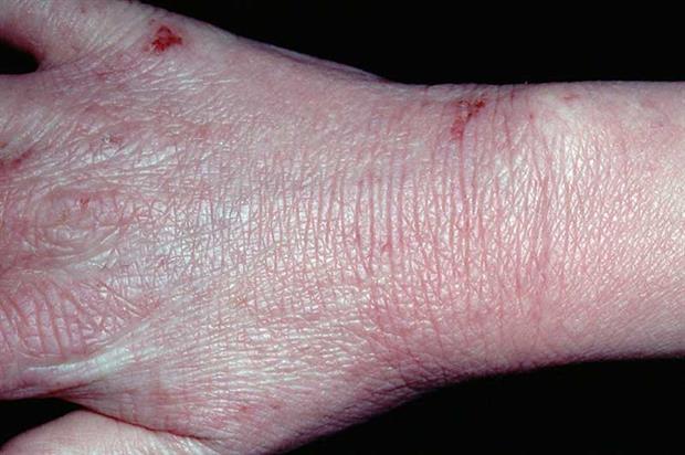 dermatitis on top of hands - photo #19