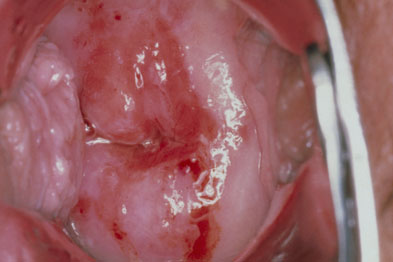 Cervical intaepithelial neoplasia: HPV-based screening detected high-grade lesions earlier