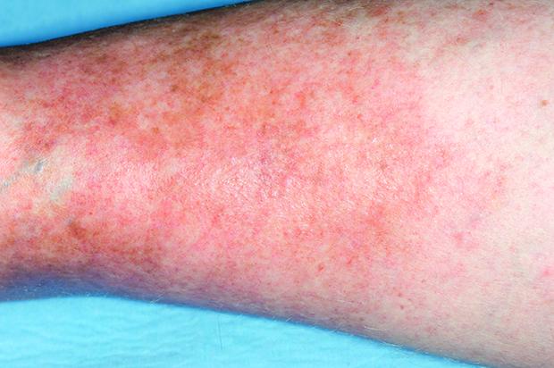 Varicose eczema: skin changes may hamper accurate diagnosis (Dr P Marazzi/SPL)