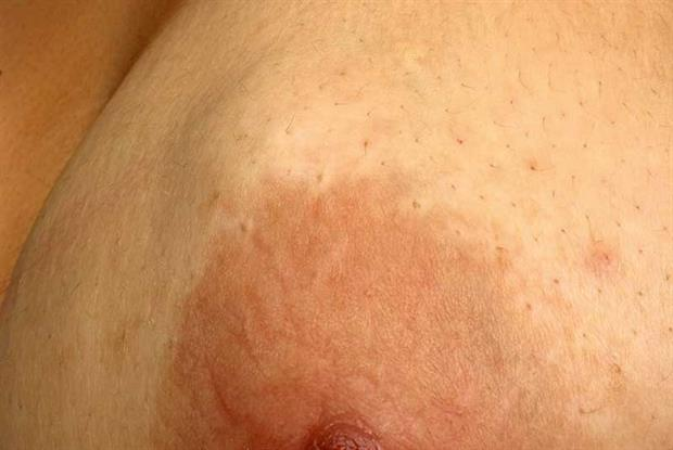 Breast the nipple lump on