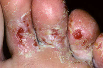 Pictorial Case Study A Fungal Foot Infection Gponline
