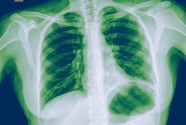 A patient with signs of pneumonia in the left lower lobe of her lung