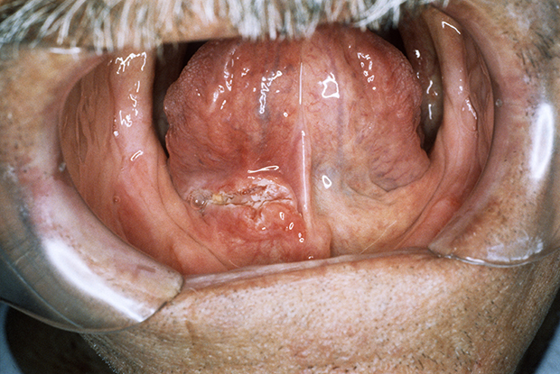 Close-up of a malignant tumour (centre left) in a man's mouth (Photo: Clinica Claros/Science Photo Library)