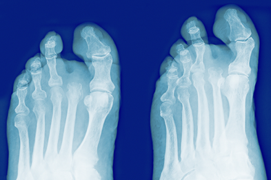 Amputated toe. Coloured frontal (left) and oblique (right) X-rays of the foot of a diabetic with an amputated second toe (Photograph: SPL)