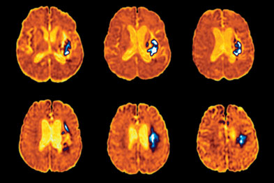 Stroke: patients with high BP faced higher risk of cardiovascular event (photo:SPL)