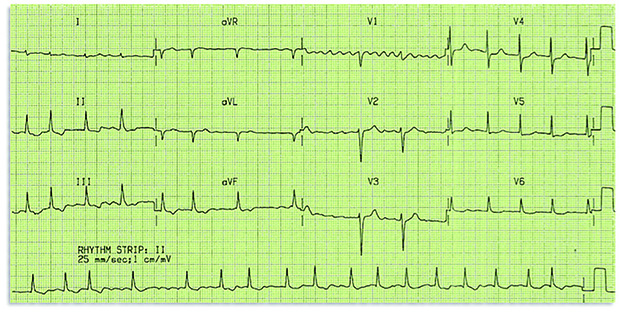 ECG of a patient with AF, the most common sustained cardiac arrhythmia (Author image)