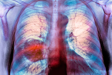 Lung cancer: 'artificial nose' detected 96% of cases (Du Cane Medical Imaging Ltd/Science Photo Library)